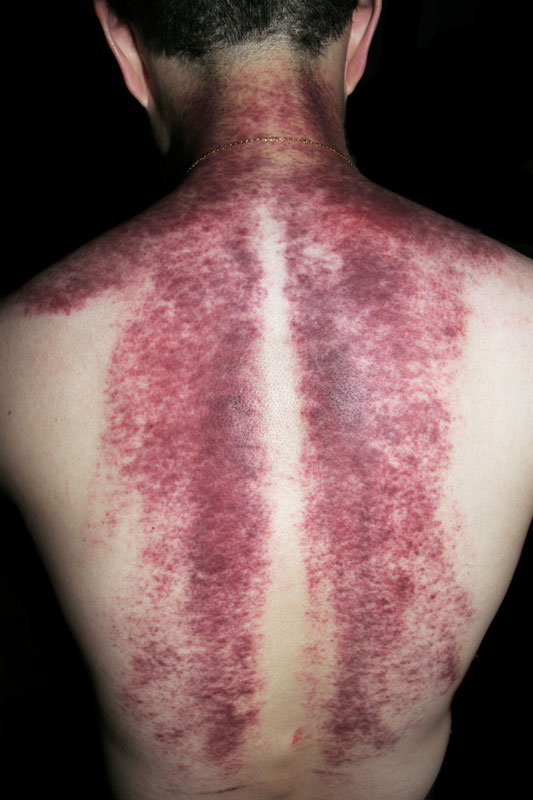 Gua Sha Treatment - NOT A GOAL OF IASTM!